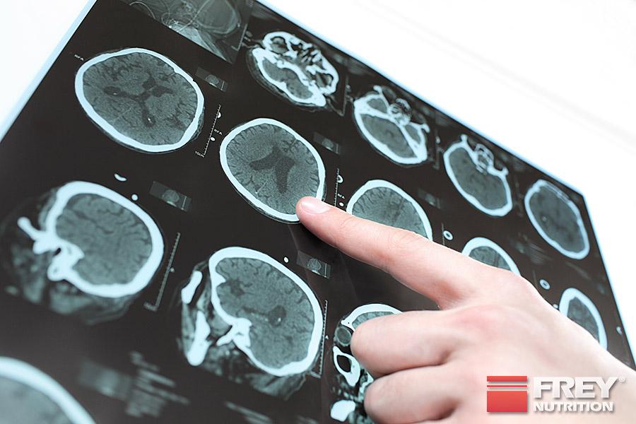Creatin kann die Gehirnleistung lt. Studien verbessern